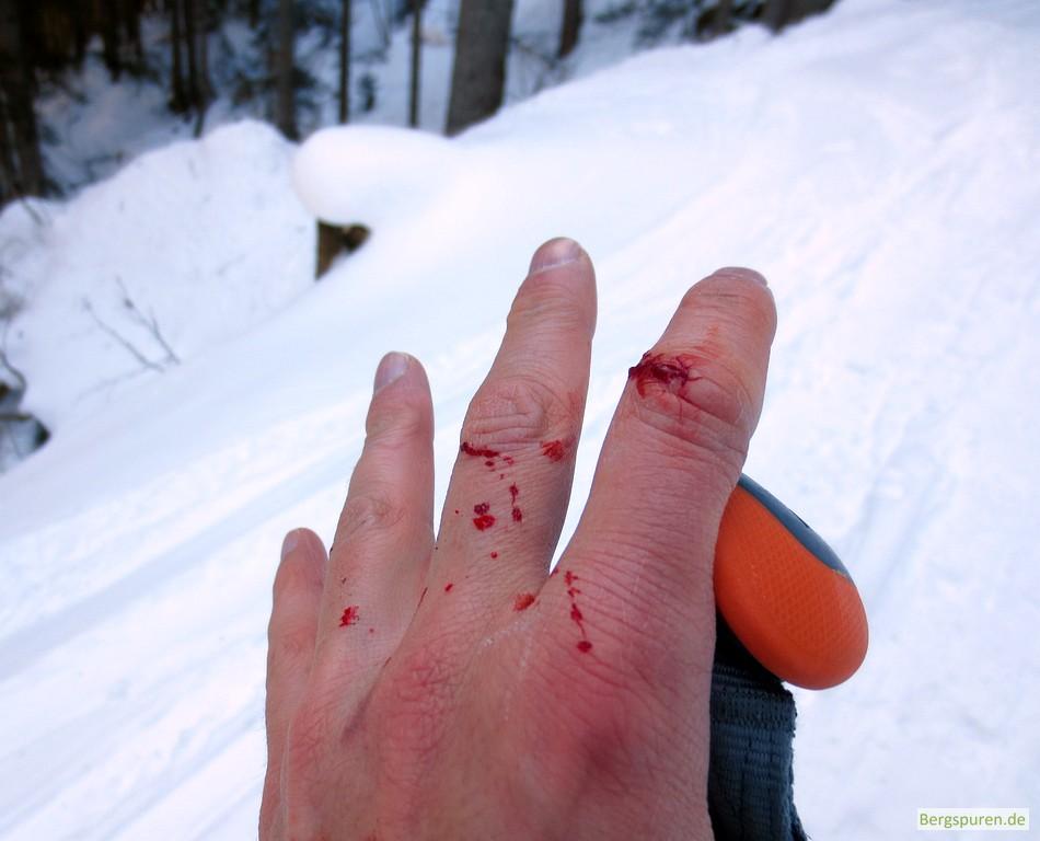 Blutende Risswunde am Finger nach Skiabfahrt ohne Handschuh